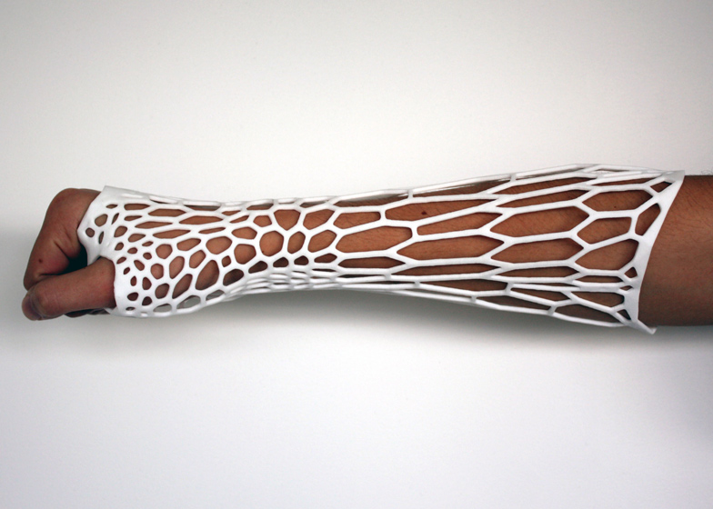 dezeen_Cortex-3D-printed-cast-for-broken-bones-by-Jake-Evill-2